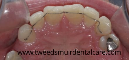 wire retainer behind front teeth